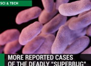 It has been a public health concern that the drug resistant super bug is increasing. The U.S. Centers for Disease Control and Prevention reported a worst case scenario wherein a woman with bacterial infection was resistant to all FDA-approved treatments. The woman from Nevada, died in September after being infected with a type of bacteria that is drug resistant.