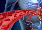 Early development of cells into blood cells could affect heart development as a study shows.